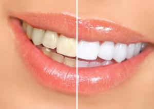 Відбілювання зубів. Міфи і реальність